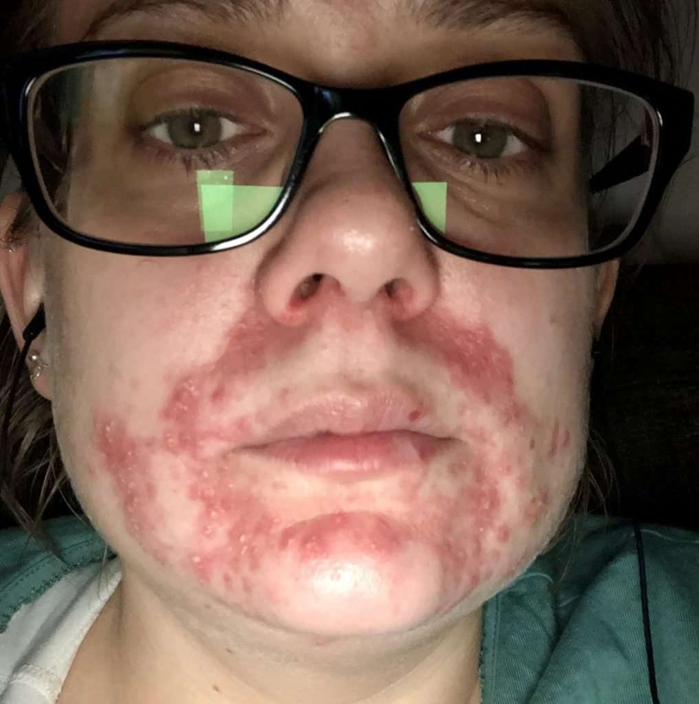 Looking back at March - my skin with Atopic Dermatitis