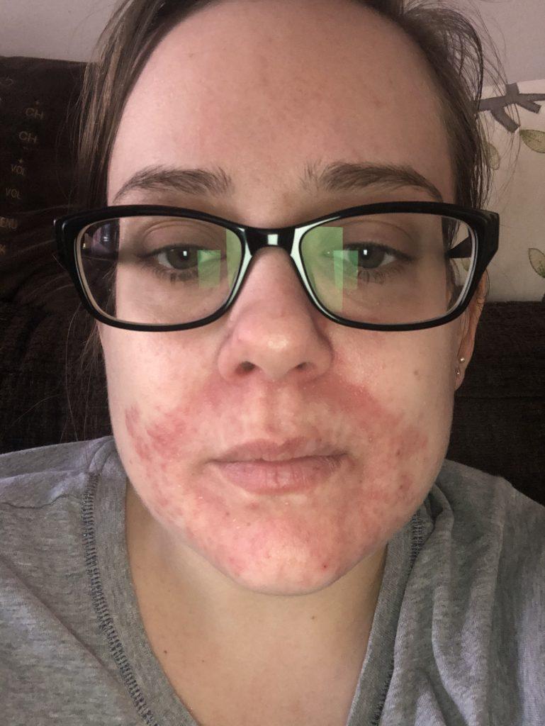 My Nightmare Skin - Suffering from Atopic Dermatitis